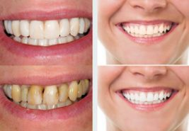 before and after pictures of a person who had dental care teeth whitening