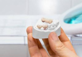 dental implants in the making being held up