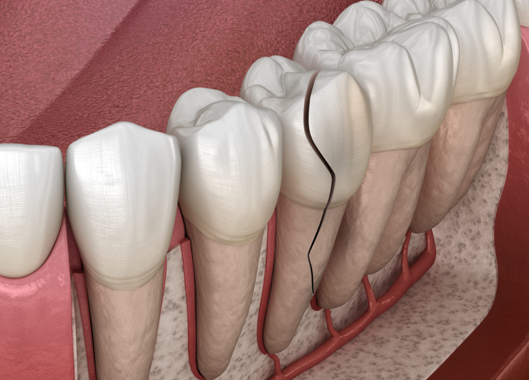 3D image of a cracked tooth